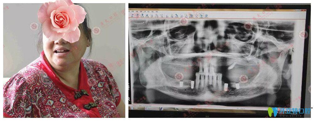 广州种植牙医院哪家好?广大口腔顾客种植牙真人案例来验证