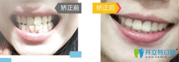 广州哪里做牙齿正畸好?来看广大口腔牙齿矫正前后对比图