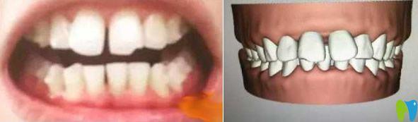 晒我在贵阳东华做牙齿矫正前后对比照 附带牙套1~12月变化图