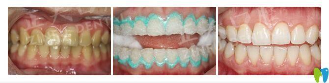 正夫口腔激光牙齿美白案例
