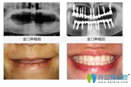 德韩口腔种植牙前后效果对比图
