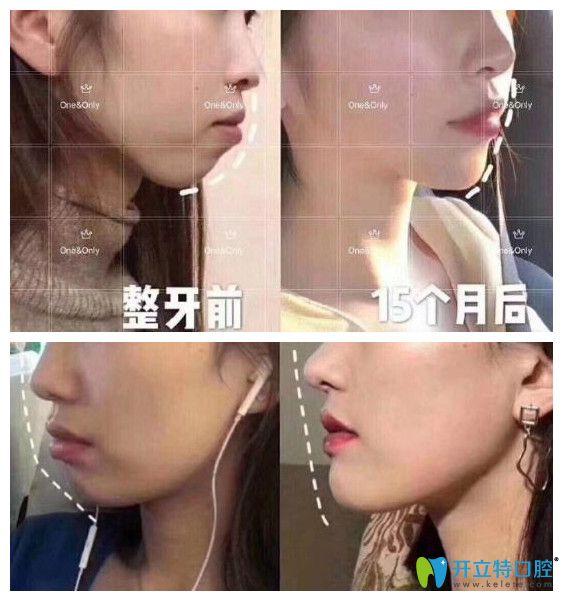 广州壹加壹口腔中心牙齿矫正案例