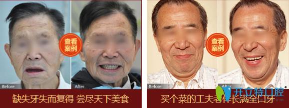 北京中诺立得用种植全口牙案例图