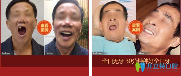 北京中诺口腔立得用全口种植牙案例