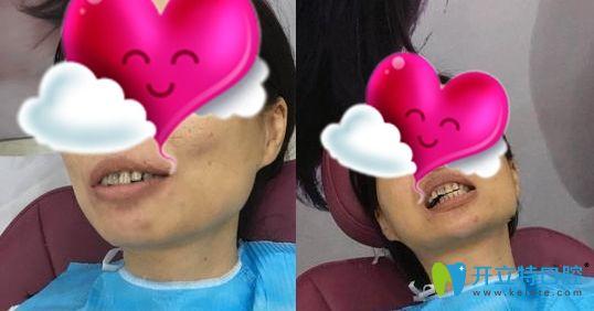 广州壹加壹口腔的全瓷牙贴面矫正了我多年的四环素黄牙