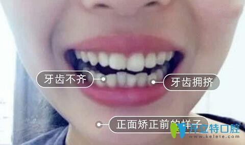 牙齿拥挤正畸不拔牙,我在梅州中大口腔做了片切半隐形矫正