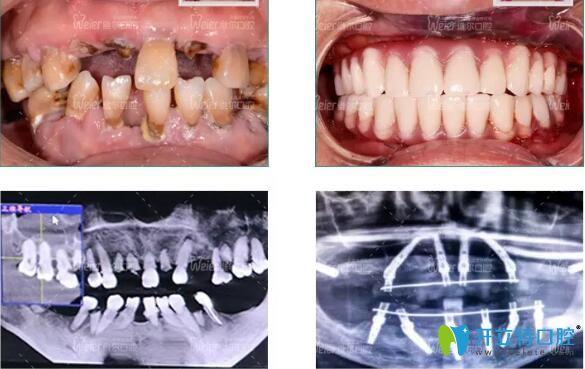 患有重度牙周病的阿姨在维尔口腔做穿翼种植案例