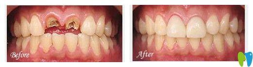 惠州致美口腔种植牙案例