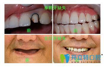 深圳德贝美口腔种植牙前后对比