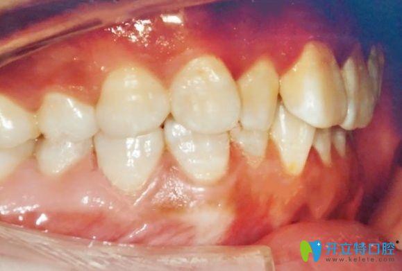 记录在杭州时光口腔戴陶瓷牙套矫正牙齿深覆盖1年来的点滴
