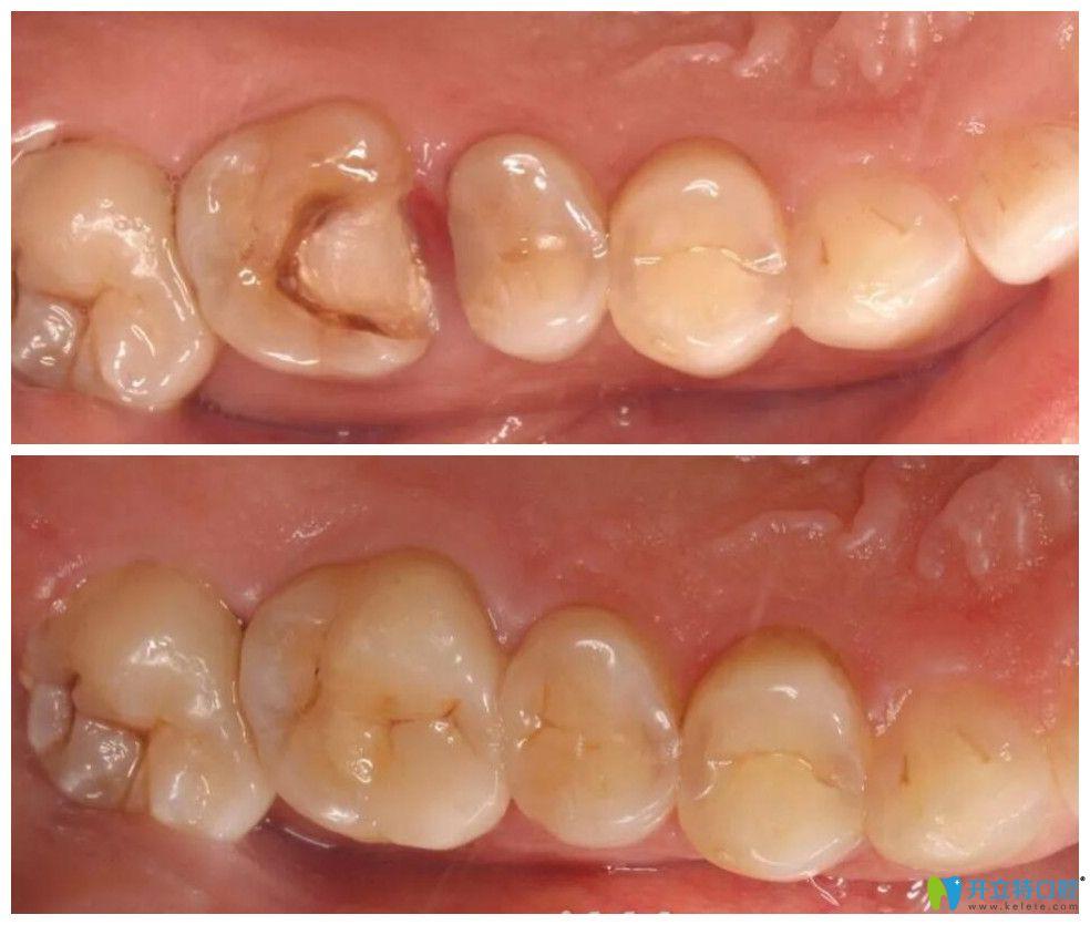 瑞齿佳口腔根管治疗+嵌体修复案例前后效果对比