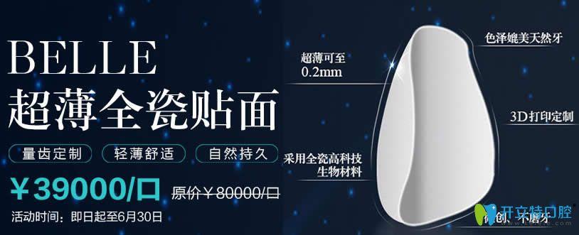 北京维乐口腔牙齿贴面优惠图