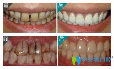 瓷贴面修复牙齿案例