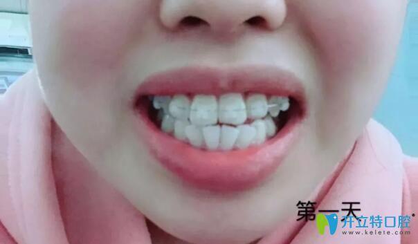 半隐形牙齿矫正第1天