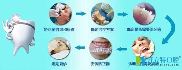 正畸知识分享:牙齿矫正详细步骤和过程图解