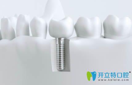 想问下:韩国的种植牙品牌美格真和登腾以及奥齿泰哪个好呢?