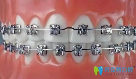 牙齿矫正步骤之戴牙套