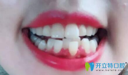 牙齿矫正日记,在西安美立方口腔戴陶瓷牙套360天乱牙变齐