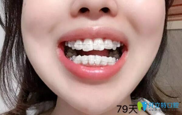 矫正牙齿79天效果图