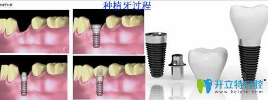 韩国各品牌的种植牙过程