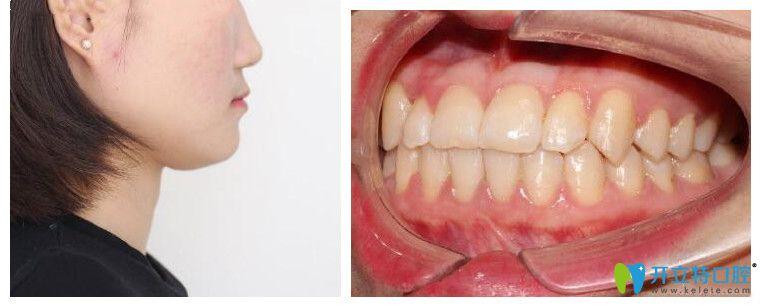 上海中博口腔正颌正畸治疗后效果