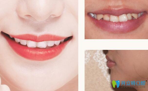 深圳格伦菲尔口腔矫正牙齿怎么样呢?来看看真人正畸案例