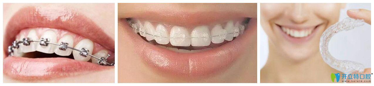 无锡北极星口腔牙齿矫正3大技术