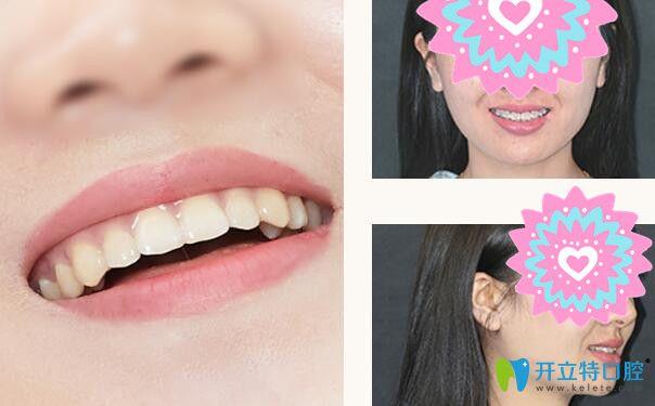 格伦菲尔口腔牙齿前突矫正案例前后效果对比