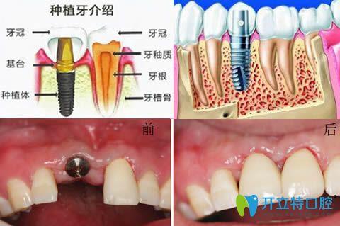 佛山拜尔口腔种植牙技术