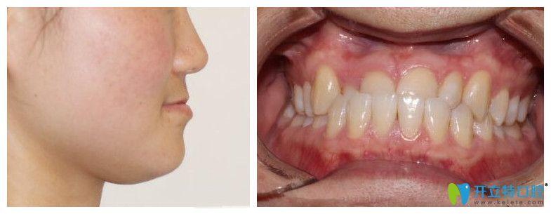 上海中博口腔医院做正颌怎么样?看反颌矫正效果和术后反馈