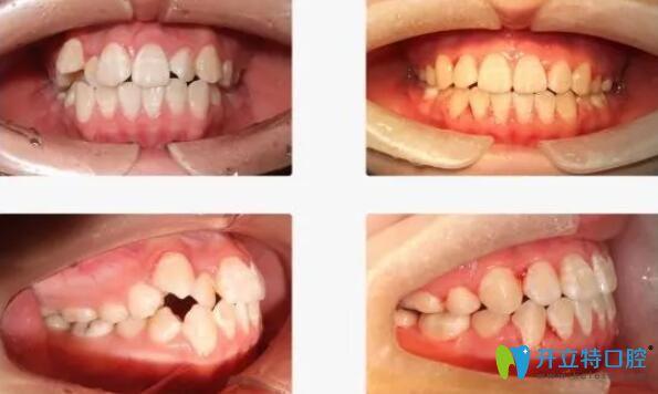 惟真口腔牙齿拥挤不齐,个别牙反颌矫正案例前后效果对比