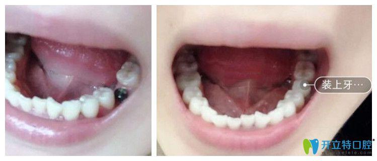 成都圣贝牙科即刻种植牙案例