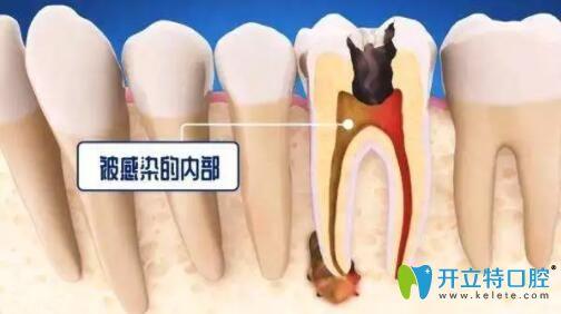 死髓牙不处理会怎么样