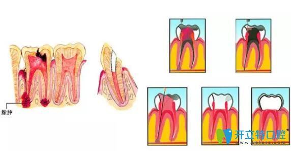 死髓牙怎么治疗