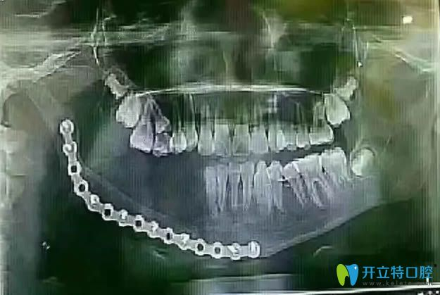 乳牙坏了会影响恒牙吗?小姑娘因乳牙龋坏花16万切除下颌骨!