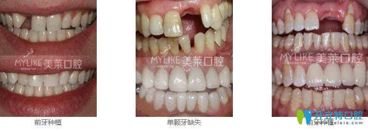 深圳种植牙哪家好?来看美莱口腔真人种植牙案例效果对比图