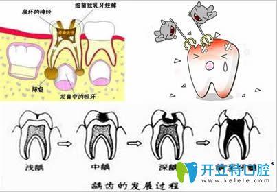 龋齿发展过程图解