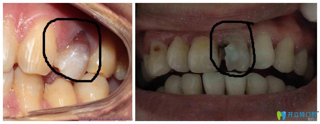 死髓牙不处理会怎么样?治疗后能用一辈子吗?