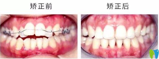 杭州维恩陈瑶医生青少年牙齿开颌及门牙前突矫正对比图