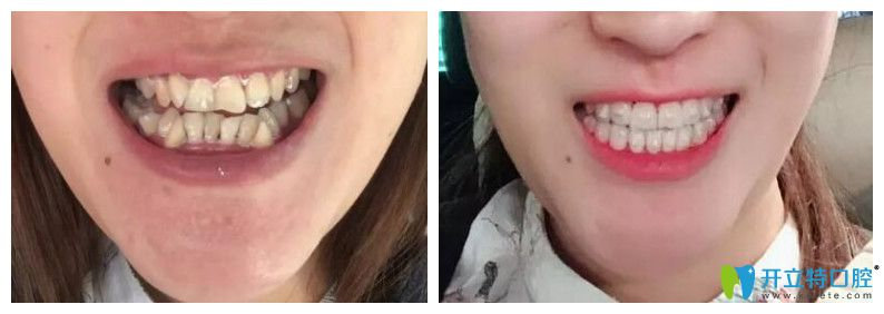 成都圣贝口腔隐形牙齿矫正案例