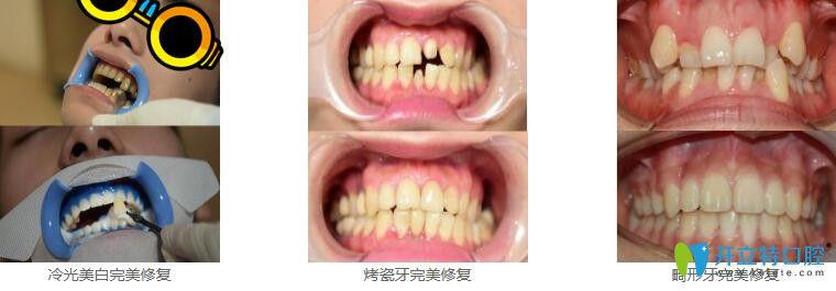 深圳美莱口腔冷光美白+烤瓷牙+瓷贴面修复畸形牙案例