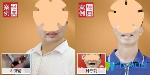 广州广大口腔顾客种牙案例效果图