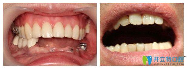 沈阳百嘉丽口腔种植牙案例