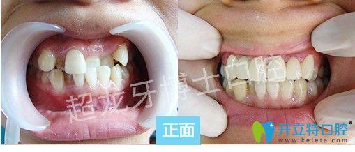 长春超龙牙博士王聪主任虎牙和地包天矫正前后对比照