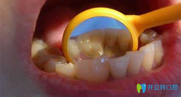 福州艾尚美口腔解析——儿童融合牙换牙后会好吗?