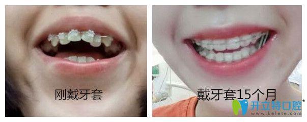 北京圣贝口腔半隐形陶瓷托槽牙齿矫正案例