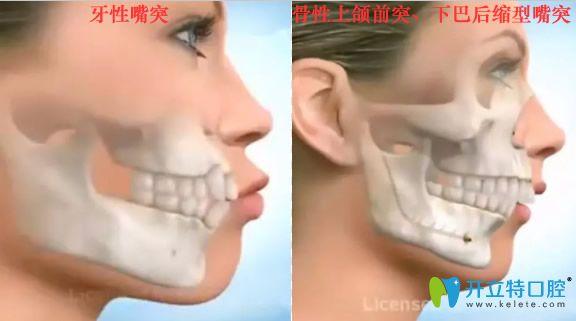 牙性突嘴和骨性上颌前突下巴后缩嘴突对比照
