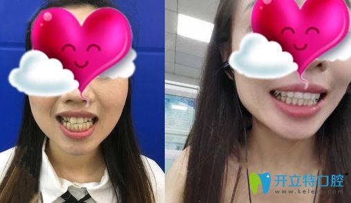 广州壹加壹口腔的牙齿矫正效果对比图