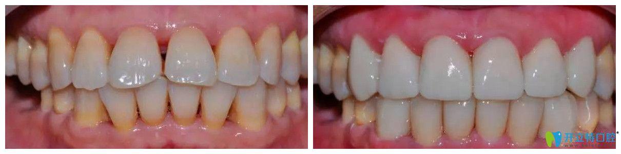 北极星口腔瓷贴面修复黄牙案例