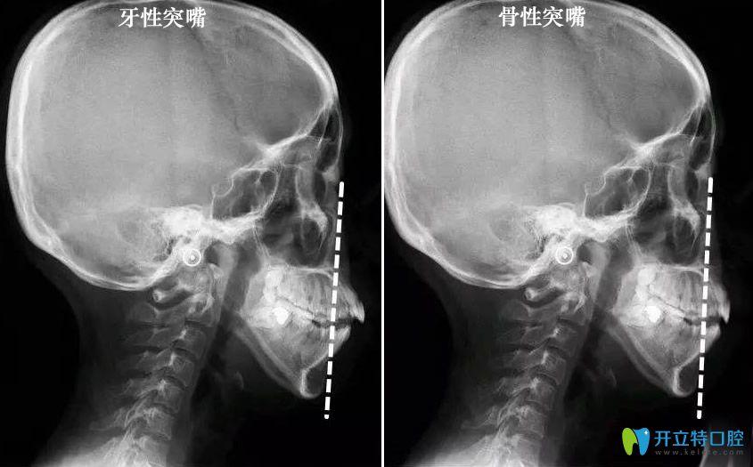 骨性突嘴和牙性凸嘴判断对比图